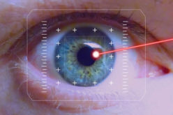Medical Technology Watch: Exciting Career Opportunities With Laser Technology