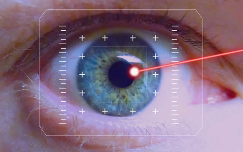 Laser Technology Market Size And Forecast